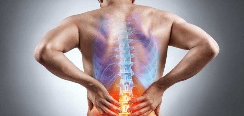 El famoso nervio ciático: ¿Responsable de todos los dolores de espalda?